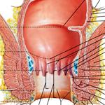 mislukte operatie fistel